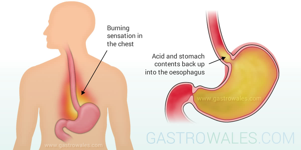 Reflux - acid and stomach contents back up into esophagus