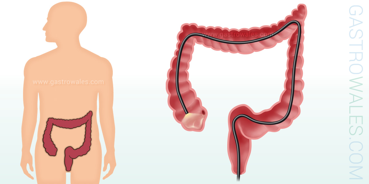 Colonoscopy is an endoscopic examination of the large intestine