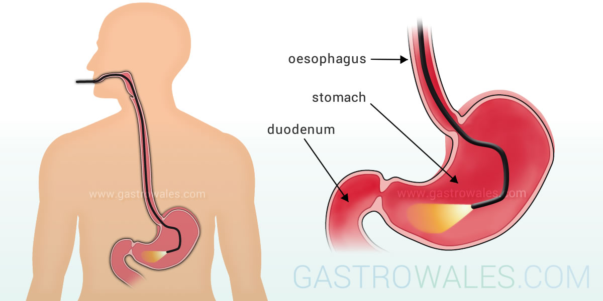 Gastroscopy is an endoscopic test into the stomach via the throat