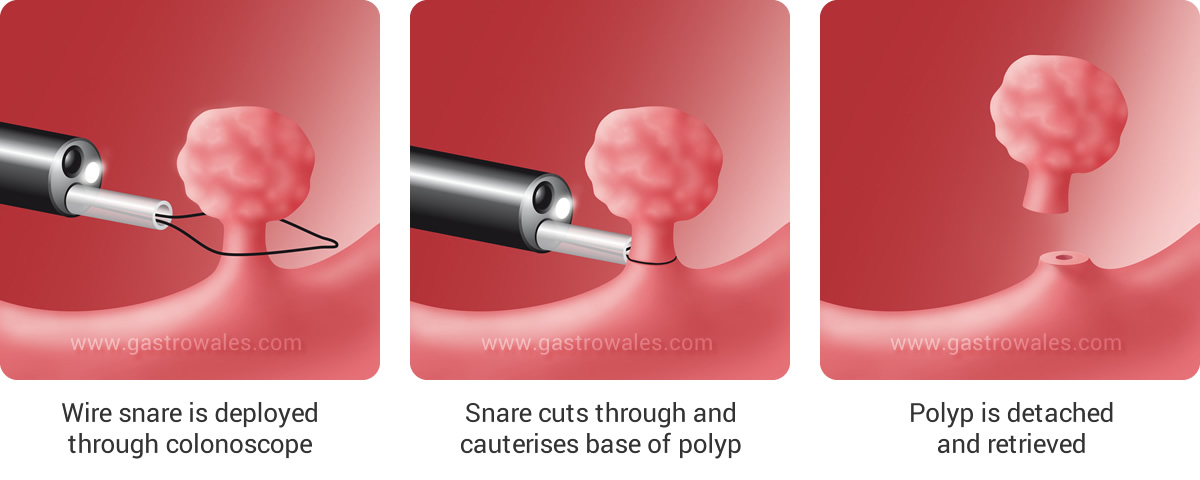 Removal of polyp by means of colonoscope